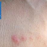 Как выглядят укусы клопов на теле человека